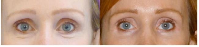 ENDYMED Before & After